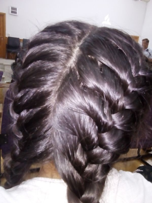 Igieniena scalpului
